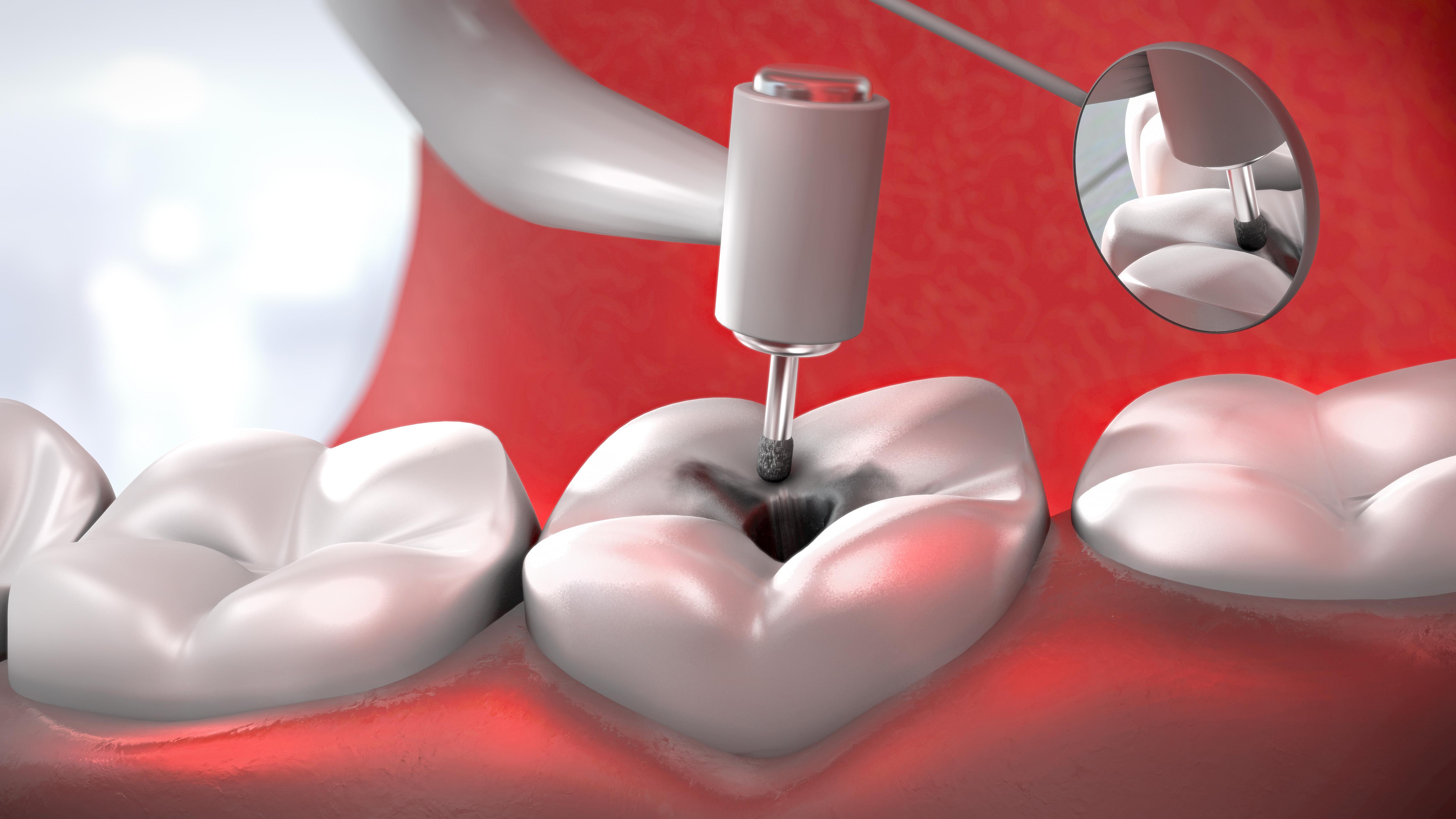 Med lokalbedøvelse vil man ikke oppleve noe ubehag i forbindelse med tannfylling.