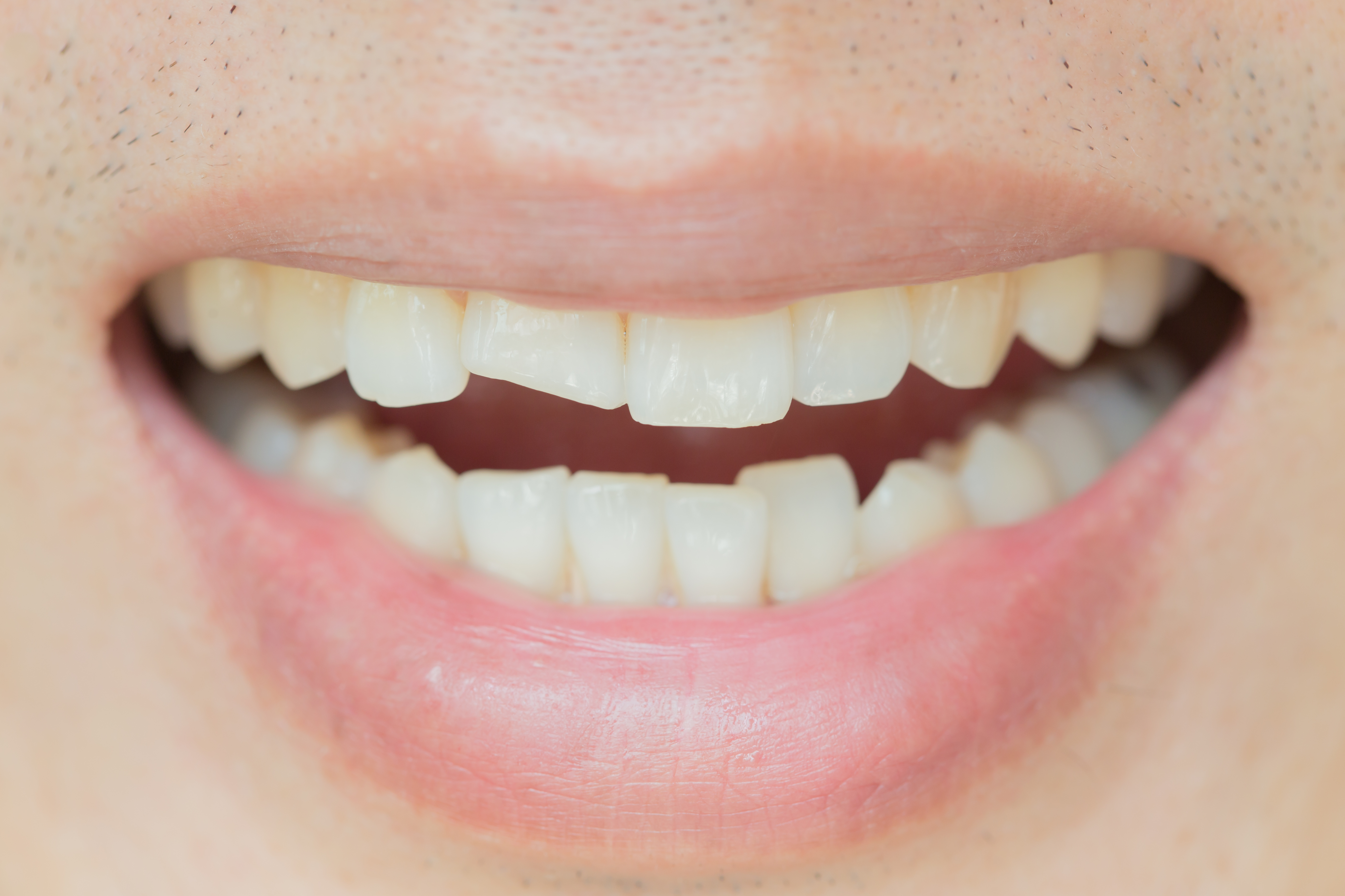 Eksempel på en knekt/skadd tann