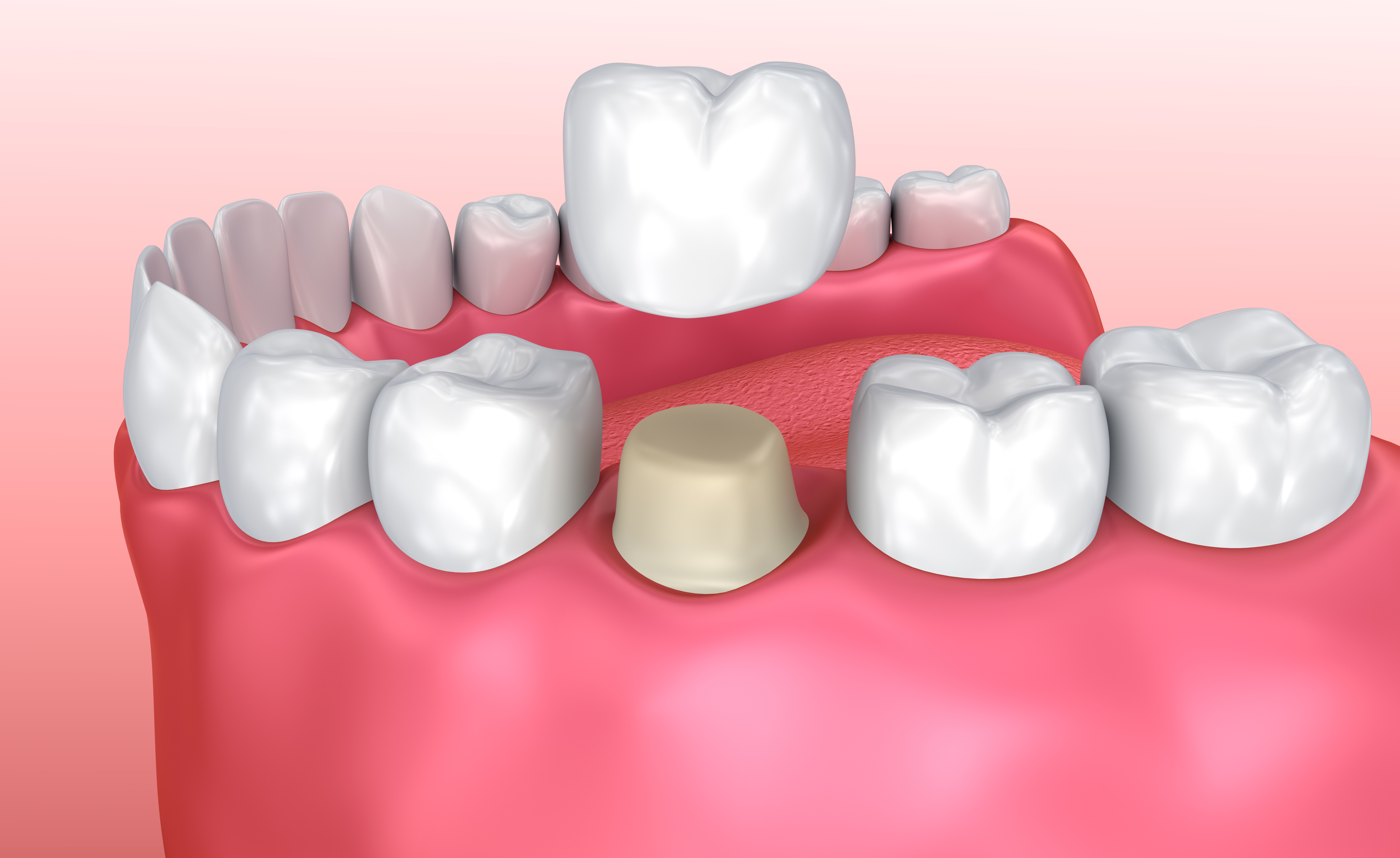 Tannkronen er delen av tannen som er synlig over tannkjøttet.